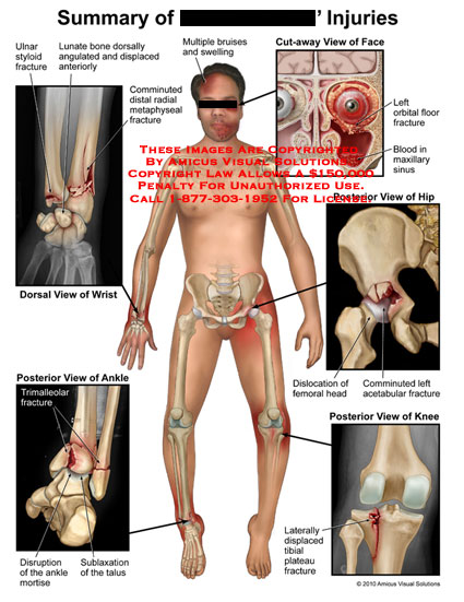 amicus,injury,summary,ulnar,styloid,fracture,lunate,bone,angulated,displaced,comminuted,radial,metaphyseal,wrist,ankle,trimalleolar,disruption,mortise,sublaxation,tallus,bruises,swelling,orbital,floor,fracture,blood,maxillary,sinus,dislocation,femoral,head,comminuted,acetabular,displaced,tibial,plateau