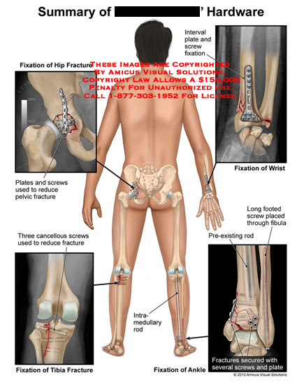 amicus,injury,summary,fixation,hip,fractures,plates,screws,reduce,pelvic,cancellous,screws,tibia,interval,plate,wrist,long,footed,fibula,pre-existing,rod,secured,ankle