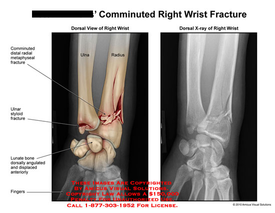 amicus,injury,wrist,fracture,radius,ulna,comminuted,metaphyseal,styloid,lunate,bone,angulated,displaced,x-ray