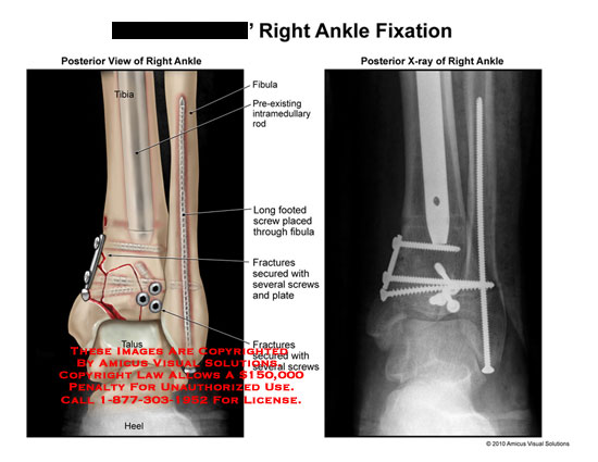 amicus,surgery,ankle,fixation,tibia,fibula,intramedullary,rod,long,footed,screw,fracture,plate,secure
