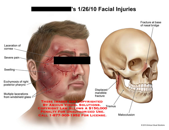 Facial injuries resulting in headache
