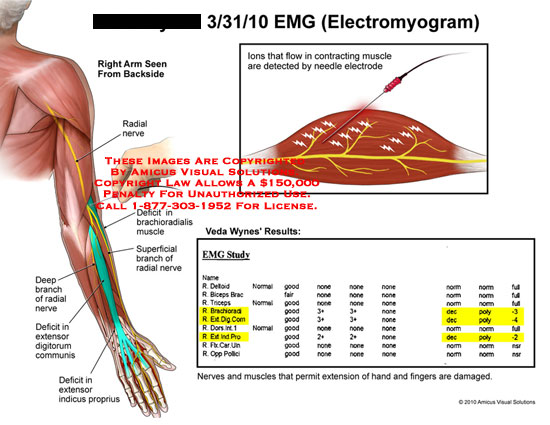 electromyography essay Electromyography (emg) is an electrodiagnostic medicine technique for evaluating and recording the electrical activity produced by skeletal muscles emg is performed.