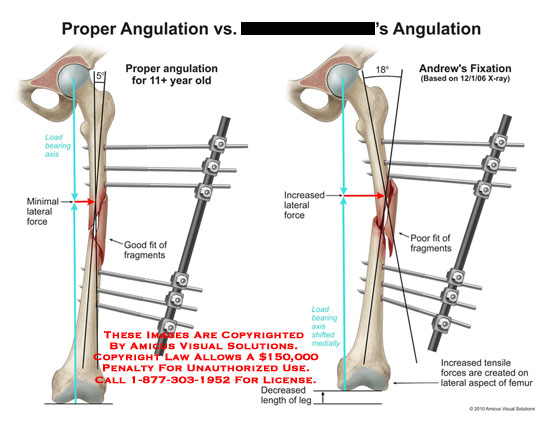 amicus,medical,leg,angulation,lateral,force,fragments,fixation,tensile,force