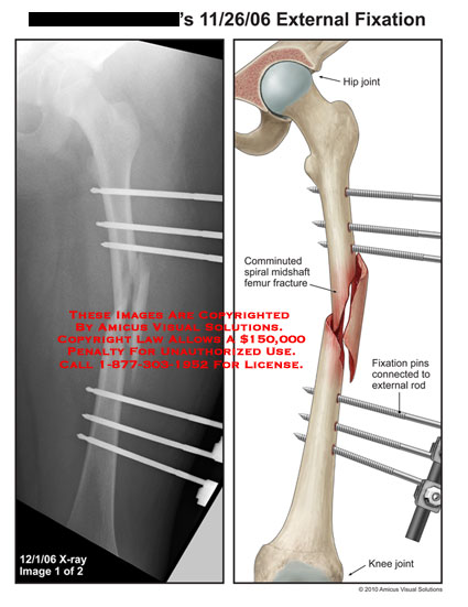 amicus,surgery,leg,femur,external,fixation,hip,joint,comminuted,spiral,midshaft,fracture,pins,connected,rod,knee,joint,x-ray