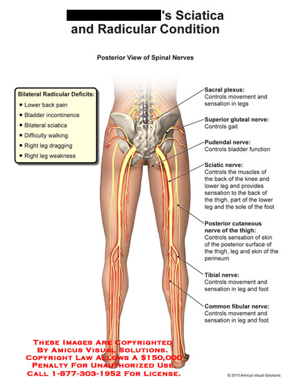 amicus,medical,lower,extremities,sciatica,radicular,condition,spinal,nerves,deficits,back,pain,bladder,incontinence,bilateral,difficulty,walking,legs,dragging,weakness,sacral,plexus,controls,movement,sensation,superior,gluteal,gait,pudendal,function,sciatic,muscles,knee,thigh,sole,foot,posterior,cutaneous,skin,perineum,tibial,common,fibular