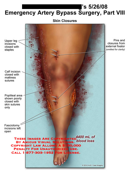 AMICUS Illustration of amicus,surgery,leg,artery,bypass,emergency ...
