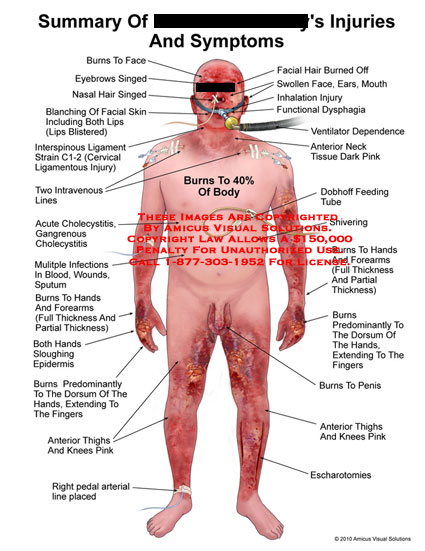 amicus,injury,summary,injuries,symptoms,burns,face,eyebrows,singed,nasal,hair,blanching,facial,skin,lips,blistered,interspinous,ligament,strain,C1-2,cervical,ligamentous,intravenous,lines,cholecystitis,gangrenous,infections,blood,wounds,sputum,hands,forearms,full,partial,thickness,sloughing,epidermis,fingers,thighs,knees,pink,pedal,arterial,line,placed,burned,off,swollen,ears,mouth,inhalation,functional,dysphagia,ventilator,dependence,neck,tissue,dark,dobhoff,feeding,tube,shivering,penis,escharo