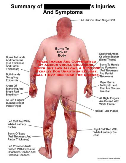 amicus,injury,summary,injuries,symptoms,burns,body,hair,head,singed,off,hands,forearms,full,thickness,partial,sloughing,epidermis,areas,blanching,bright,red,bleeding,fingers,burned,index,calf,white,leathery,eschar,legs,ankle,exposure,achilles,tendons,peroneal,scattered,dead,tissue,major,circumferential,rectal,tube,placed