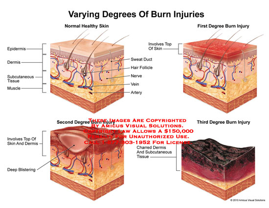 amicus,injury,skin,burn,epidermis,dermis,subcutaneous,tissue,muscle,sweat,duct,hair,follicle,nerve,vein,artery,first,degree,second,blistering,third,charred