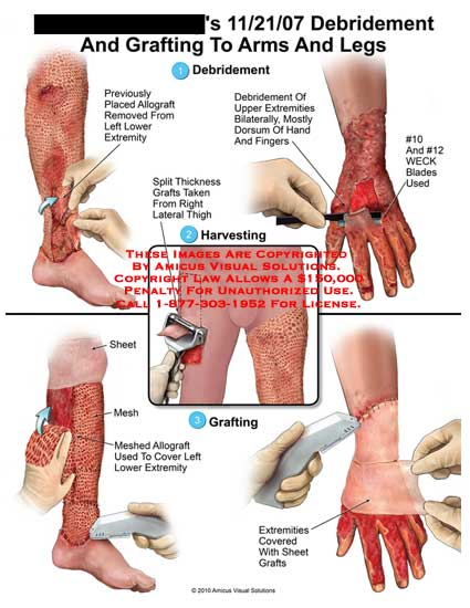 amicus,surgery,arms,legs,debridement,grafting,previously,placed,allgraft,removed,lower,extremity,upper,extremities,dorsum,hand,fingers,#10,#12,WECK,blades,used,split,thickness,grafts,taken,thigh,harvesting,sheet,meshed,covered