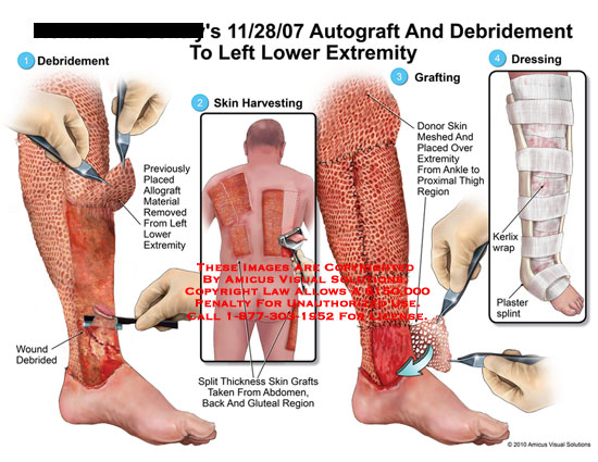 amicus,surgery,leg,lower,extremity,burn,autograft,debridement,wound,allograft,removed,skin,harvesting,split,thickness,grafts,abdomen,back,gluteal,donor,meshed,ankle,thigh,kerlix,wrap,plaster,splint,dressing