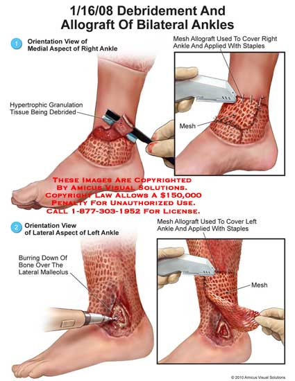 amicus,surgery,ankles,debridement,allograft,hypertrophic,granulation,tissue,debrided,mesh,cover,applied,staples,burring,down,bone,malleolus