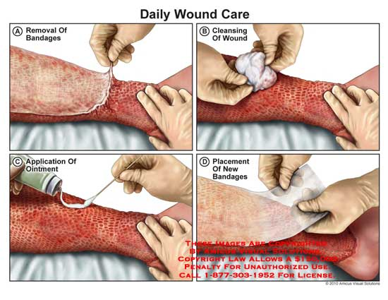 amicus,medical,leg,burn,wound,care,bandage,removal,cleansing,ointment,application,placement