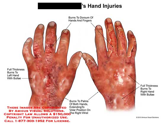amicus,injury,hands,burn,full,thickness,bullae,fingers,palms,volar,position,wrist