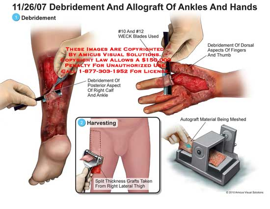 amicus,surgery,ankles,hands,burns,debridement,allograft,calf,harvesting,split,thickness,grafts,thigh,WECK,blades,meshed,autograft
