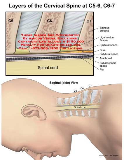 amicus,anatomy,cervical,spine,Layers,C5-6,C6-7,spinous,process,ligamentum,flavum,epidural,space,dura,subdural,arachnoid,subarachnoid,pia,spinal,cord