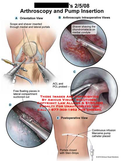 amicus,surgery,knee,arthroscopy,pump,insertion,scope,shaver,inserted,portals,shaving,chondromalacia,condyle,free,floating,pieces,compartment,suctioned,out,ACL,PCL,anterior,posterior,cruciate,ligament,probed,postoperative,portals,closed,steri-strips,continuous,infusion,Marcaine,pump,catheter,placed