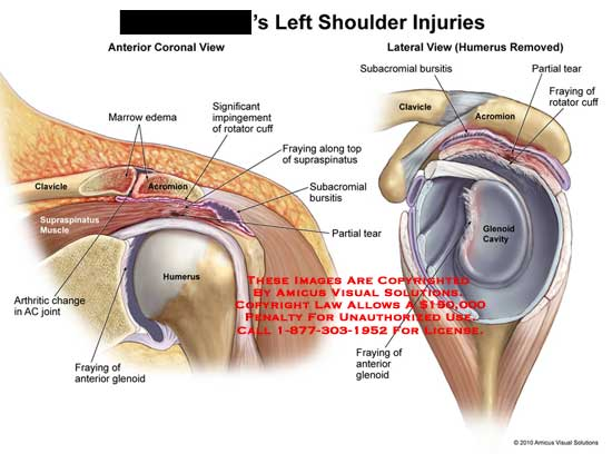 amicus,injury,shoulder,injuries,marrow,edema,clavicle,acromion,impingement,rotator,cuff,fraying,supraspinatus,subacromial,bursitis,partial,tear,muscle,arthritic,AC,joint,glenoid,cavity