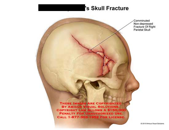 Linear Skull Fracture : Amicus illustration of injury skull fracture
