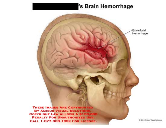 amicus,injury,brain,hemorrhage,extra-axial