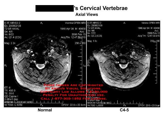 amicus,radiology,MRI,cervical,vertebrae,C4-5,axial