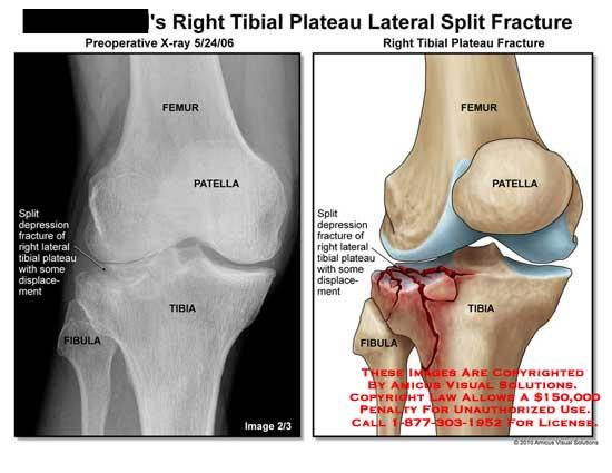 amicus illustration of amicus injury knee split fracture tibial rh medicalexhibits com