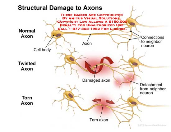 amicus,injury,axons,structural,damaged,cell,body,connections,neighbor,neuron,twisted,detachment,torn,