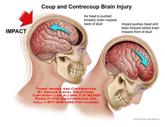 amicus,injury,brain,coup,contrecoup,impacts,head,pushed,skull,pushes,forward