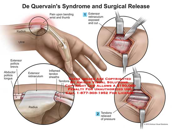 amicus,surgery,wrist,de,quervain
