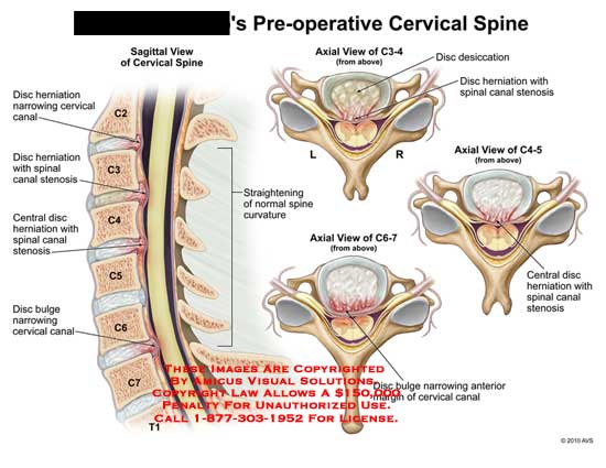 AMICUS Illustration of amicus,injury,cervical,spine,disc ...