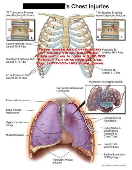 amicus,injury,chest,injuries,T6,transverse,process,non-displaced,fractures,acute,T5-6,T7-8,T9-11,ribs,T10,endplate,displaced,T6-7,pulmonary,interstital,edema,peri-aortic,mediastinal,hematoma,pneumothorax,extra-pleural,hypoexpanded,lungs,atelectasis,persistent,pleural,effusion,contusion,subcutaneous,emphysema,chest,tube,adjacent,lower,lobe,volume,loss,stellate,laceration,diaphragm