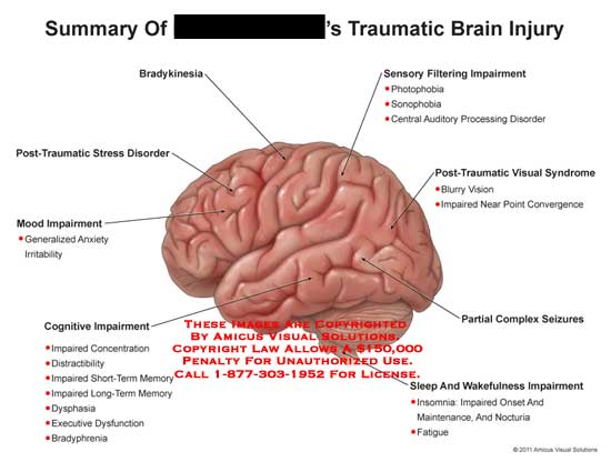 amicus,injury,brain,traumatic,bradykinesia,post-traumatic,stress,disorder,mood,impairment,anxiety,irritability,cognitive,impaired,concentration,distractibility,short-term,memory,long-term,dysphasia,executive,dysfunction,bradyphrenia,sensory,filtering,photophobia,sonophobia,central,auditory,processing,visual,syndrome,blurry,vision,near,point,convergence,partial,complex,seizures,sleep,wakefulness,insomnia,onset,maintenance,nocturia,fatigue
