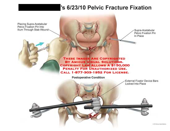 amicus,medical,pelvis,pelvic,fracture,fixation,supra-acetabular,pin,ilium,stab,wound,fixator,device,bars,locked,place