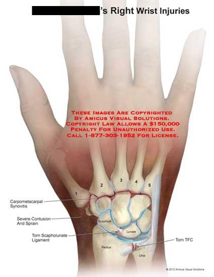 amicus,injury,wrist,injuries,carpometacarpal,synovitis,contusion,sprain,torn,scapholunate,ligament,TFC,triangular,fibrocartilage,complex,scaphoid,lunate,radius,ulna