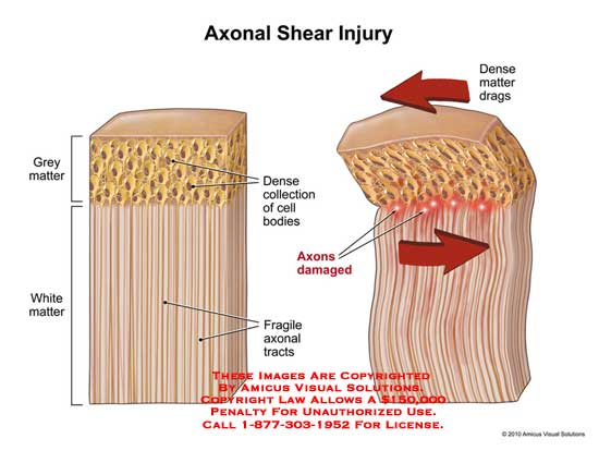 amicus,injury,axonal,shear,grey,white,matter,collection,cell,bodies,tracts,axons,damaged,dense,drags