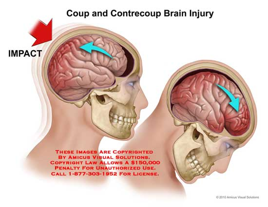 amicus,injury,brain,coup,contrecoup,impact