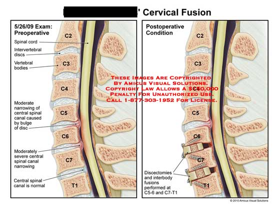 amicus illustration of amicus surgery cervical spine fusion spinal