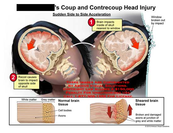 amicus,injury,head,coup,contrecoup,side,acceleration,brain,impacts,skull,window,broken,recoil,white,grey,matter,brain,tissue,cell,bodies,axons,sheared,broken,damaged,axons,junction