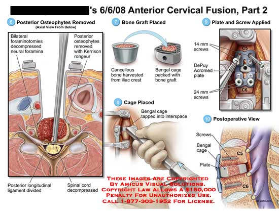 amicus,surgery,cervical,spine,fusion,part,2,osteophytes,removed,foraminotomies,decompressed,neural,foramina,Kerrison,rongeur,longitudinal,ligament,divided,spinal,cord,bone,graft,placed,cancellous,bone,harvested,iliac,crest,bengal,cage,packed,placed,bengal,tapped,interspace,plate,screw,applied,DePuy,acromed,plate