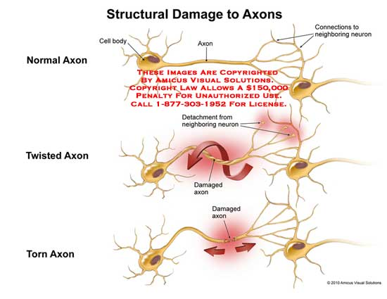 amicus,injury,axons,structural,damaged,cell,body,connections,neighboring,neuron,twisted,detachment,torn