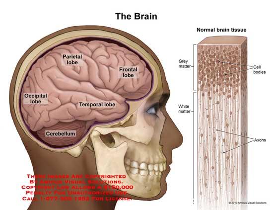 amicus,anatomy,brain,tissue,grey,white,matter,cell,bodies,axons,lobe,parietal,frontal,occipital,temporal,cerebellum