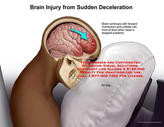 amicus,injury,brain,suddenly,deceleration,air,bag,continues,forward,momentum,collides,skull,stopped
