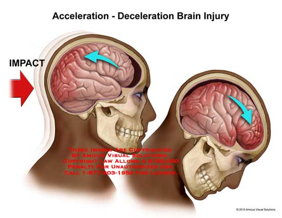 amicus,injury,brain,acceleration,deceleration,impact