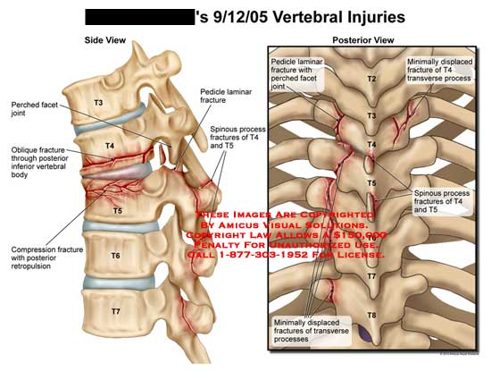 amicus,injury,spine,vertebral,perched,facet,joint,oblique,fractures,body,compression,retropulsion,pedicle,laminar,spinous,processes,T4,T5,displaced,transverse