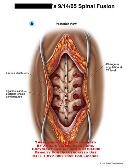 amicus,surgery,spine,vertebral,column,fusion,spinal,lamina,shattered,ligaments,tension,band,ruptured,change,angulation,T4,level