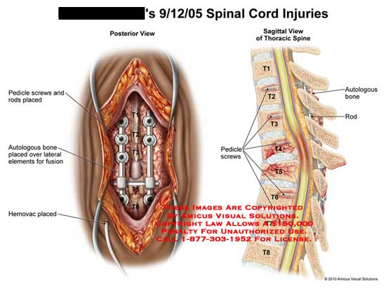 amicus,injury,spinal,cord,spine,pedicle,screws,rods,placed,autologous,bone,fusion,hemovac,lateral,elements