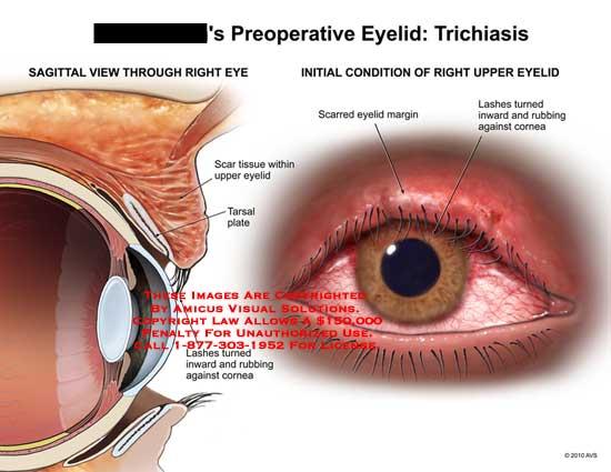 AMICUS Illustration of amicus,injury,eyelid,trichiasis ...