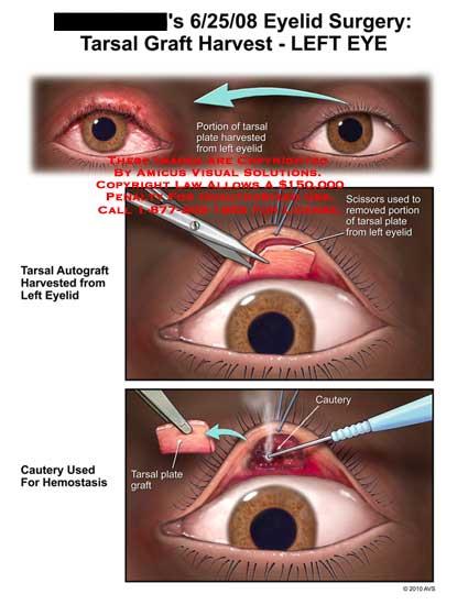Image Gallery tarsal eye