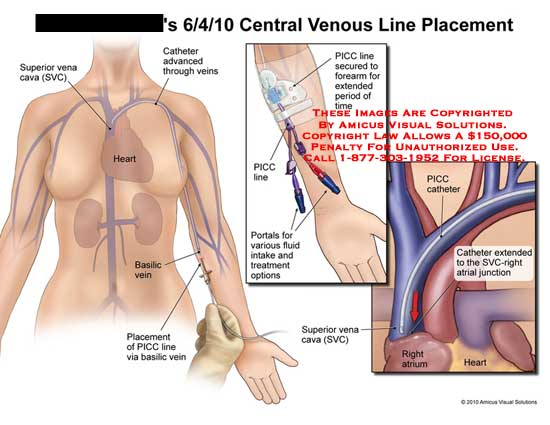 amicus,medical,veins,central,venous,line,placement,superior,vena,cava,SVC,catheter,advanced,heart,basilic,PICC,secured,forearm,portals,fluid,intake,treatment,extended,SVC-right,atrial,junction,right,atrium