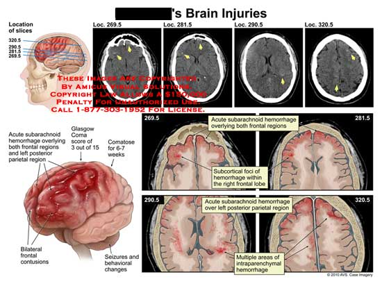 amicus,injury,brain,subarachnoid,hemorrhage,frontal,regions,parietal,glasgow,coma,comatose,bilateral,frontal,contusions,seizures,behavioral,changes,subcortical,foci,lobe,intraparenchymal